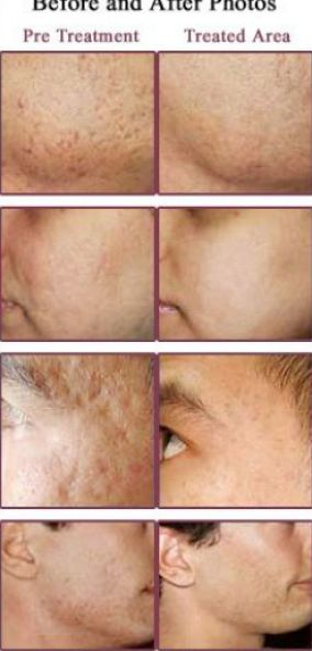 How long does epiduo take to clear skin
