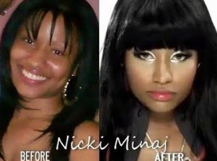 Plastic Surgery Pictures Before And After