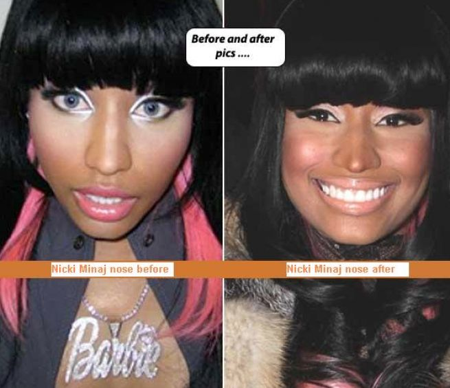 after minaj plastic nicki before body full surgery weight loss nikki howard actor terrence trim quick using supplements bodies fake