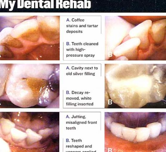 What does a cavity filling pictures 1