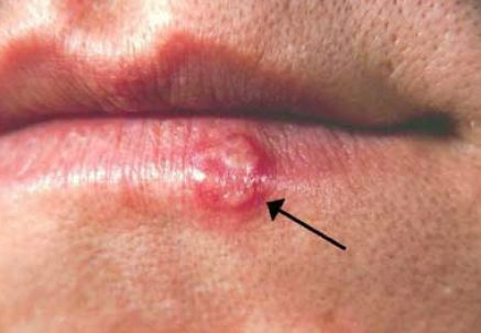 herpes mouth sores. Mouth Herpes – Cold Sores