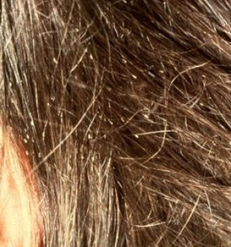 What does lice eggs look like pictures 2 Head Lice Eggs On Blonde Hair