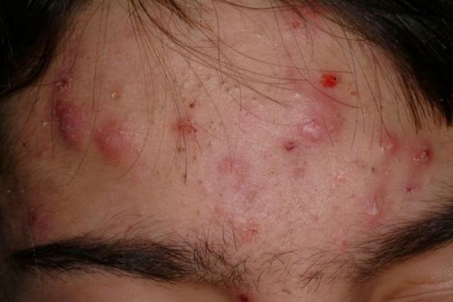 Eruptive Vellus Hair Cysts: Background, Pathophysiology ...